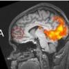 Your Brain on Drug Addicts - Thumbnail